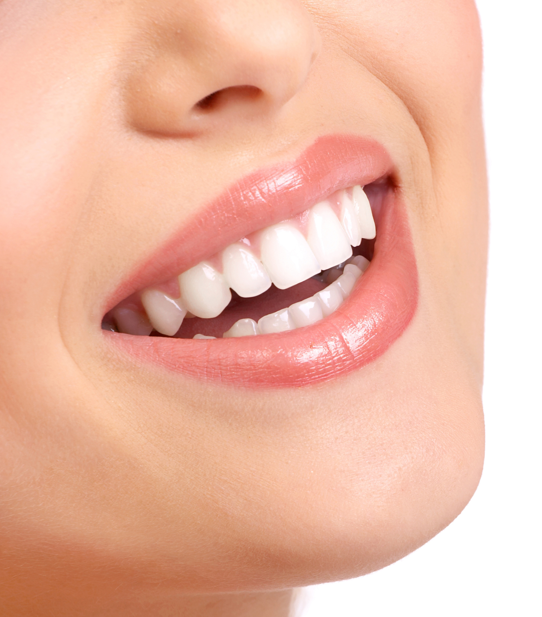 san juan capistrano teeth whitening