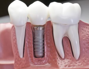 picture of a dental implant with teeth that have been capped and the stainless pin in the gums.