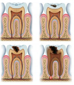 evolution of tooth decay