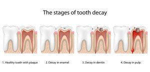 The stages of tooth decay chart